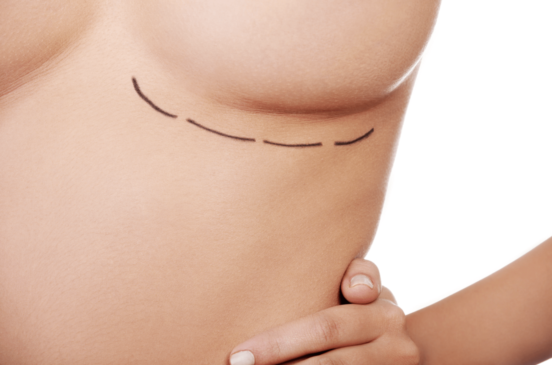 VINCENT N. ZUBOWICZ MD VNZ Plastic Surgery Emory University Hospital & Health Clinic 5 Star Rated Facelift and Breast Aug boob blog the skinny on breast surgery