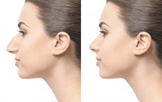 Plastic, Reconstructive, and Maxillofacial Surgery. DR Z Atlanta Emory Rhinoplasty specialist