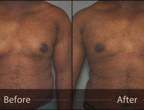 Gynecomastia: Male Treatment Options