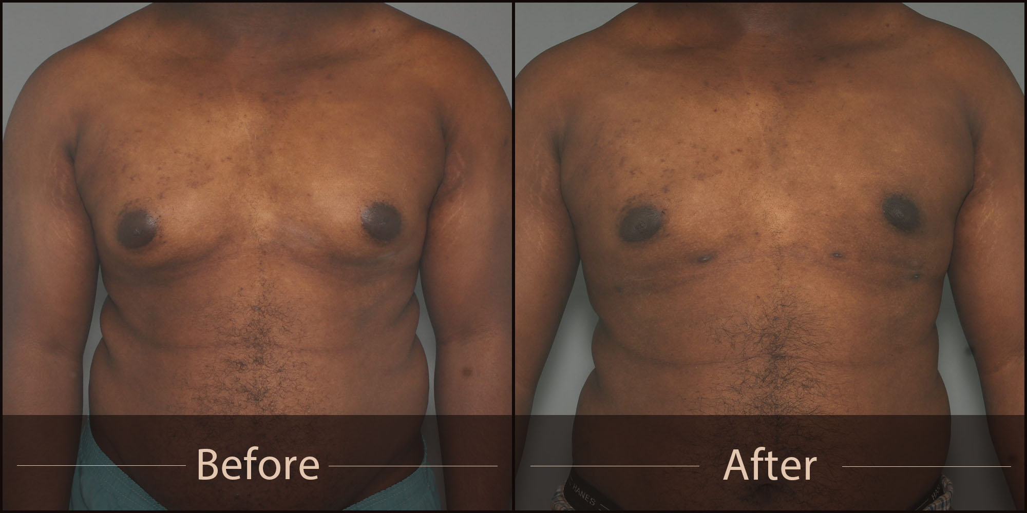 VINCENT N. ZUBOWICZ MD VNZ Plastic Surgery Emory University Hospital & Health Clinic 5 Star Rated Facelift and Breast Aug Male Makeover Man Boobs