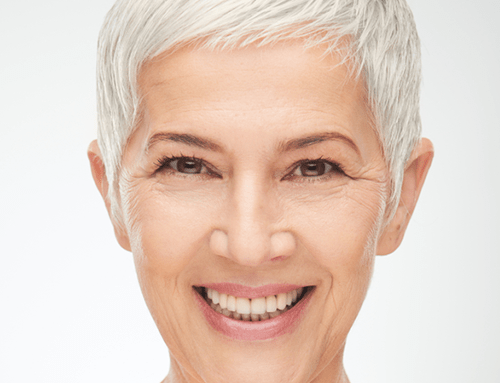 7 Things to Consider When Getting a Facelift