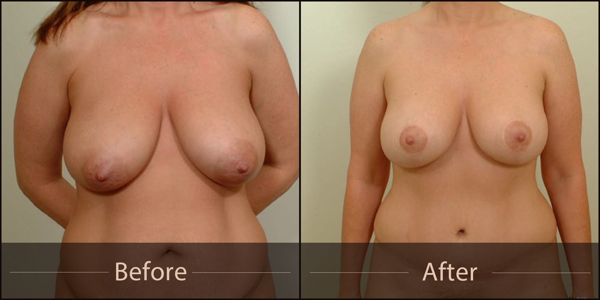 VINCENT N. ZUBOWICZ MD VNZ Plastic Surgery Emory University Hospital & Health Clinic 5 Star Rated Facelift and Breast Aug MOmmy Makeover