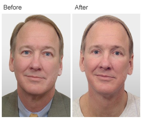 Plastic Surgery by Dr Zubowicz at Emory Aesthetic Center Atlanta