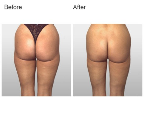 Plastic Surgery Procedure by Dr Zubowicz at Emory Aesthetic Center Atlanta