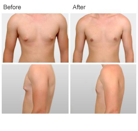 Gynecomastia plastic surgery by Dr Zubowicz at Emory Aesthetic Center Atlanta