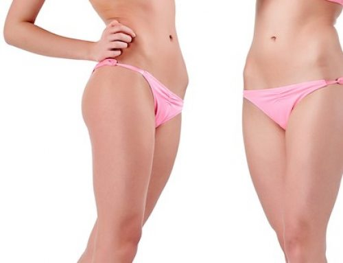 Types of Liposuction: Clearing the Confusion
