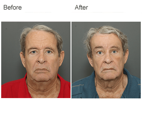 Male Brow Lift from Dr Zubowicz at the Emory Aesthetic Center