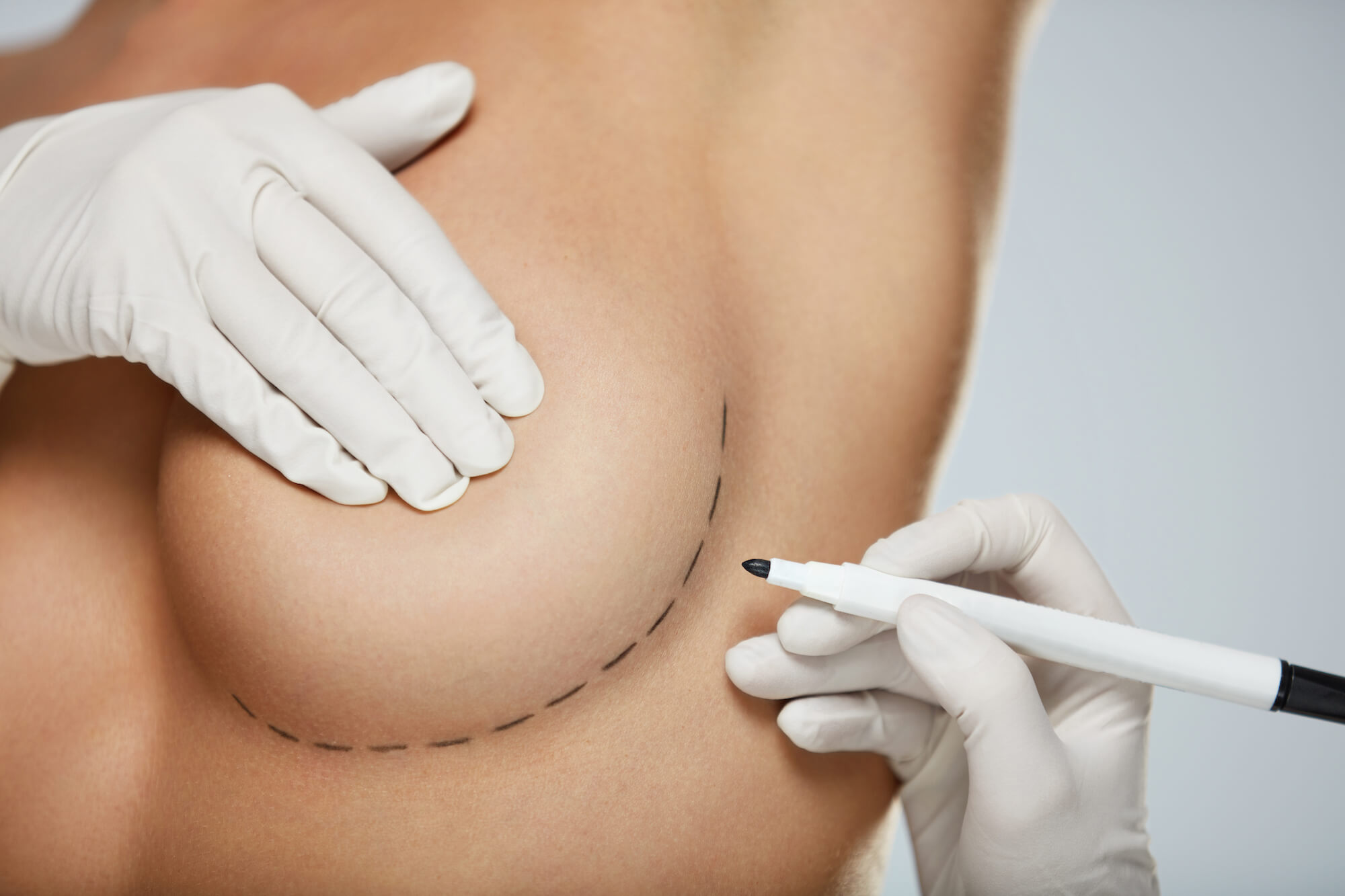 breast reshaping before and after photo gallery featured image