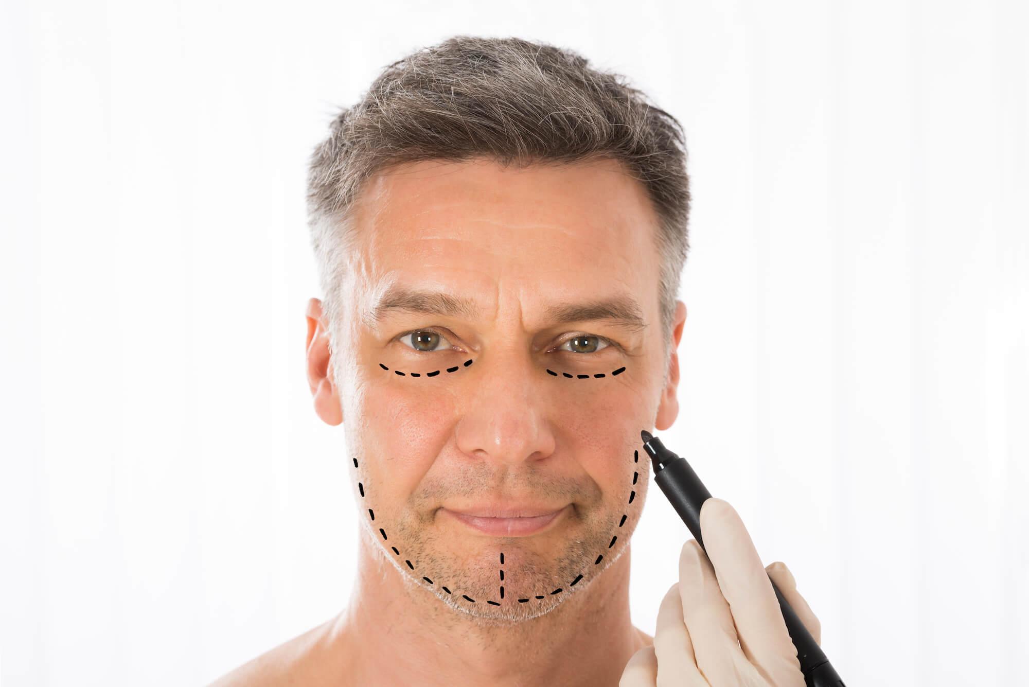 facelift surgery before and after photos plastic surgery atlanta ga