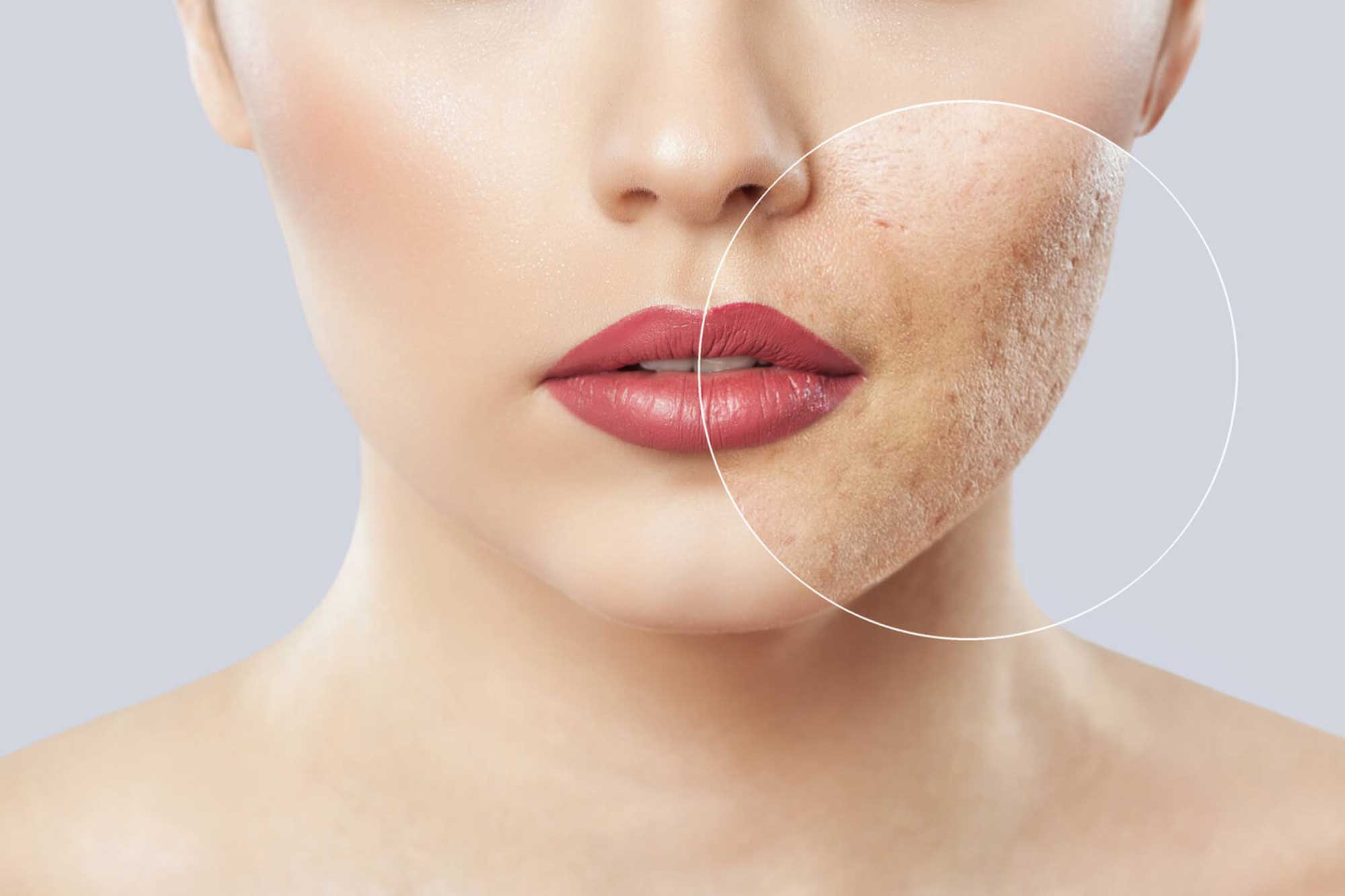 laser treatments before and after photos gallery plastic surgery atlanta ga
