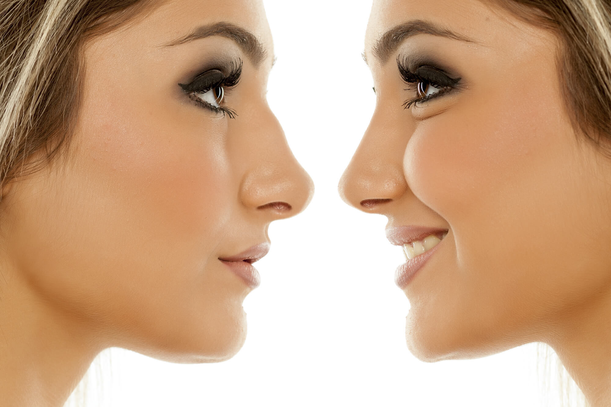 rhinoplasty before and after photos gallery plastic surgery atlanta ga