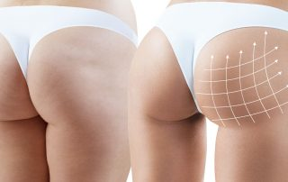 fat transfer trending body contouring procedure