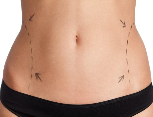 Understanding Coolsculpting vs. Liposuction