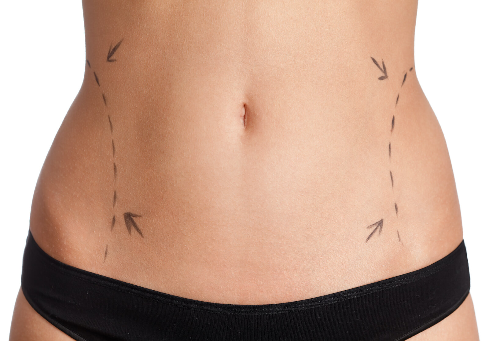 Featured Image Coolsculpting vs Liposuction