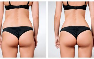 How much does Liposuction cost in Atlanta